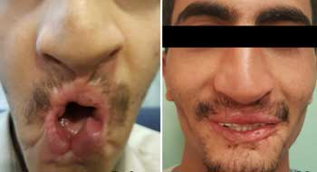 Image result for Indian doctors fix Yemeni man's face in rare reconstructive surgery